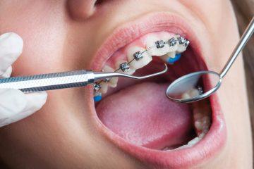 ortodoncja-vden2t